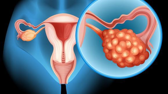 Nowe perspektywy leczenia raka jajnika
