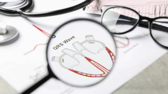 Polsko-Amerykańskie Kliniki Serca testują sztuczną inteligencję