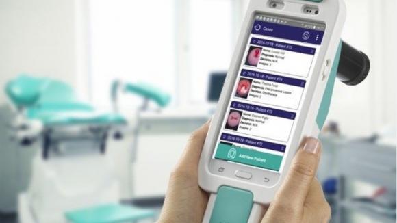 Sztuczna inteligencja pomaga wykrywać raka szyjki macicy także w Polsce