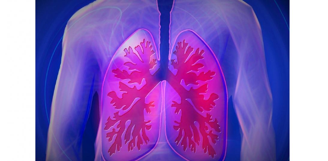 Pacjenci z rakiem płuca - niewidzialni dla systemu?