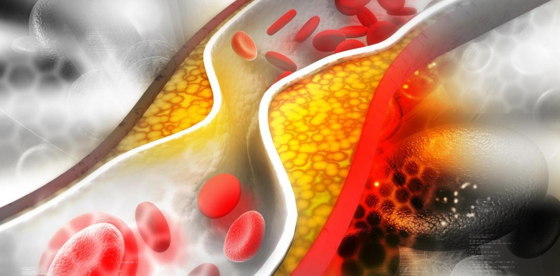 Czas na skuteczne leczenie hipercholesterolemii - apelują pacjenci, klinicyści oraz parlamentarzyści