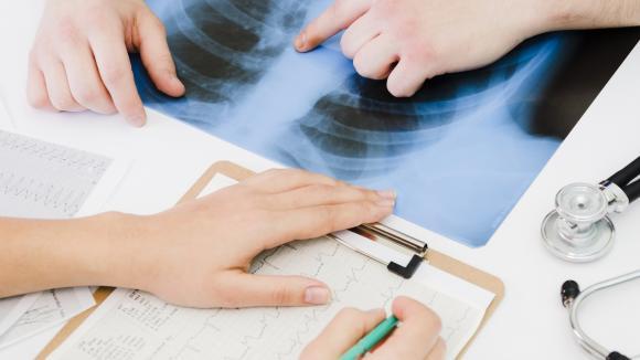 Na Pomorzu rusza program wczesnego wykrywania raka płuca