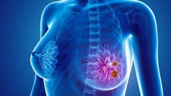 NCCN publikuje aktualne wytyczne dot. leczenia raka piersi