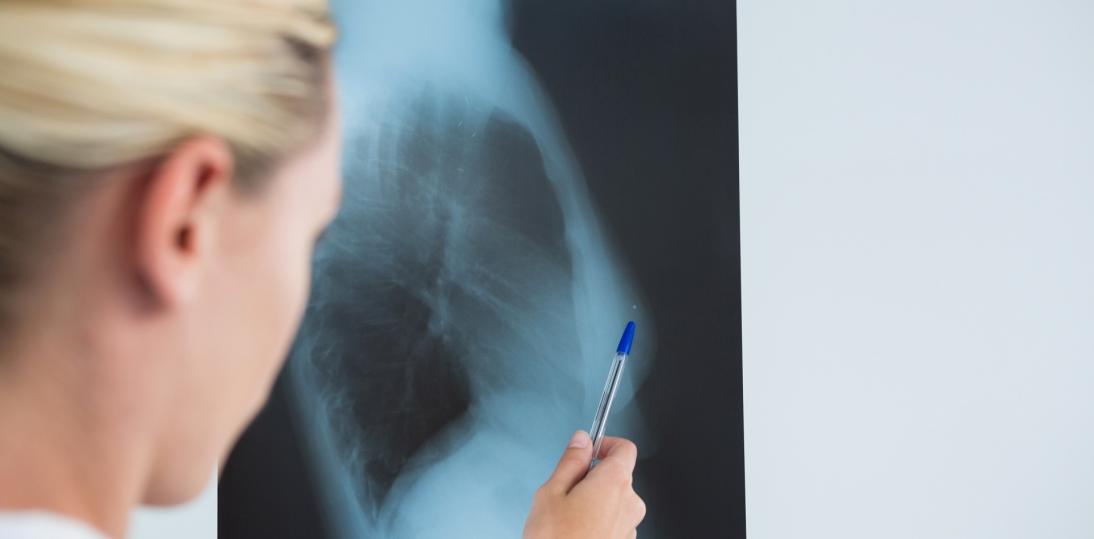 Rak piersi - czy można wyleczyć chorobę resztkową?